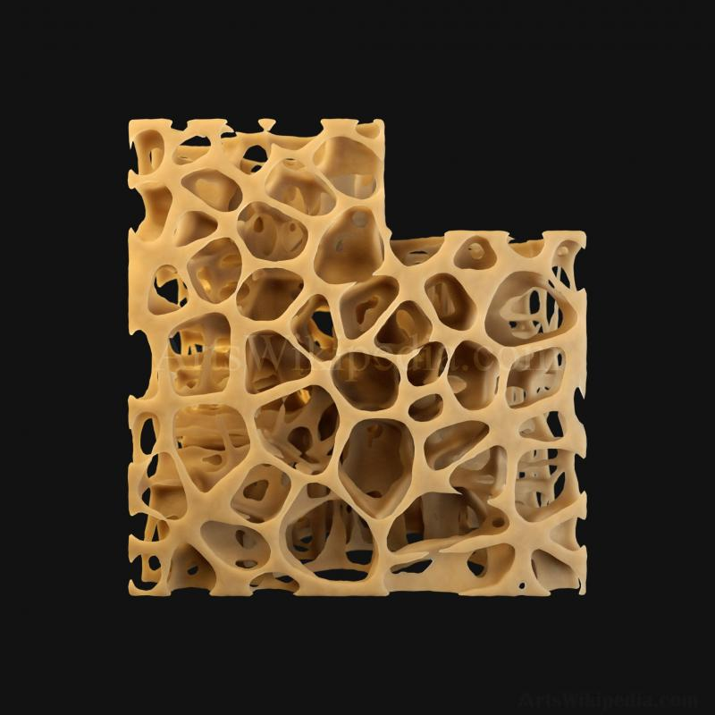 3D Osteopenia Histology of Spongy Bone Structure