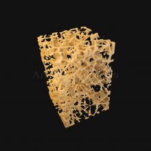 3D Osteoporosis Histology of Spongy Bone Structure