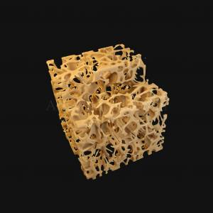 3d-trabeculae-of-spongy-bone-osteoporosis-histology