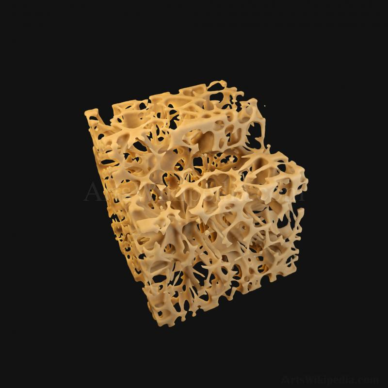 3D Trabeculae of Spongy Bone Osteoporosis Histology