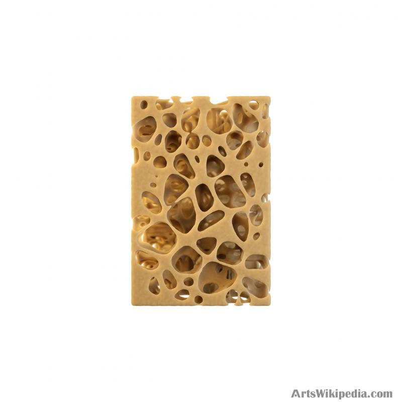 3D Spongy Bone Normal vs Osteopenia vs Osteoporosis