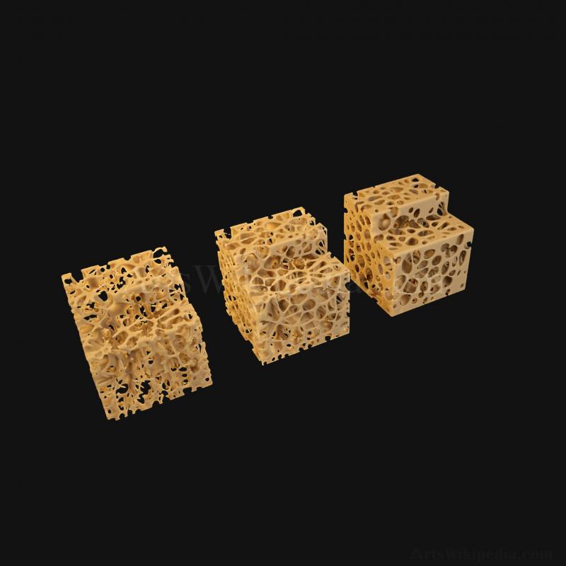 3D Normal vs Osteopenia vs Osteoporosis